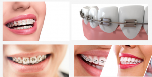 Cost of braces in Nigeria